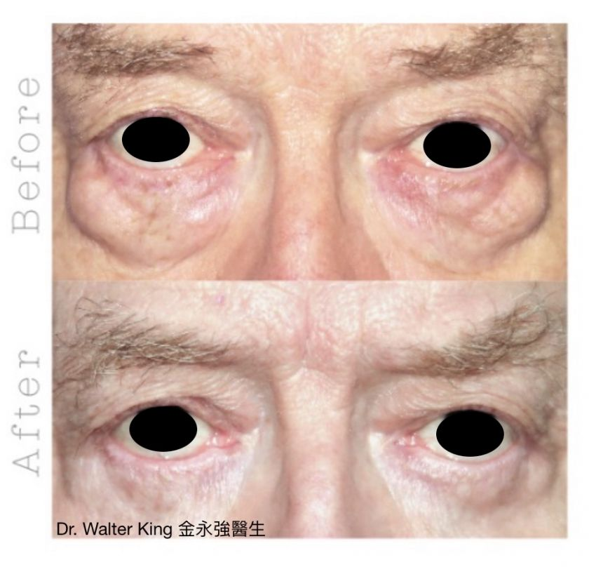 Eyebag Removal Surgery Before & After 2