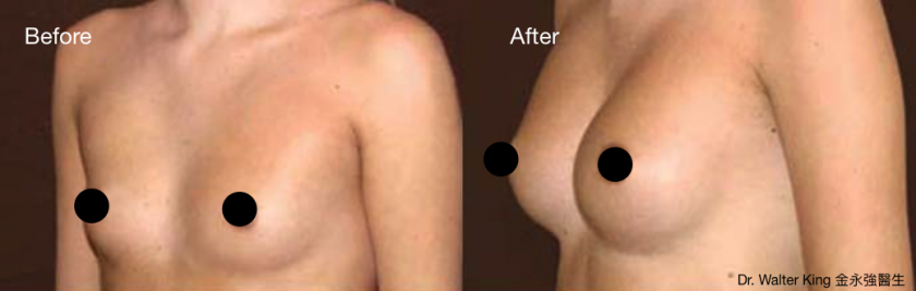 Breast Augmentation B&A