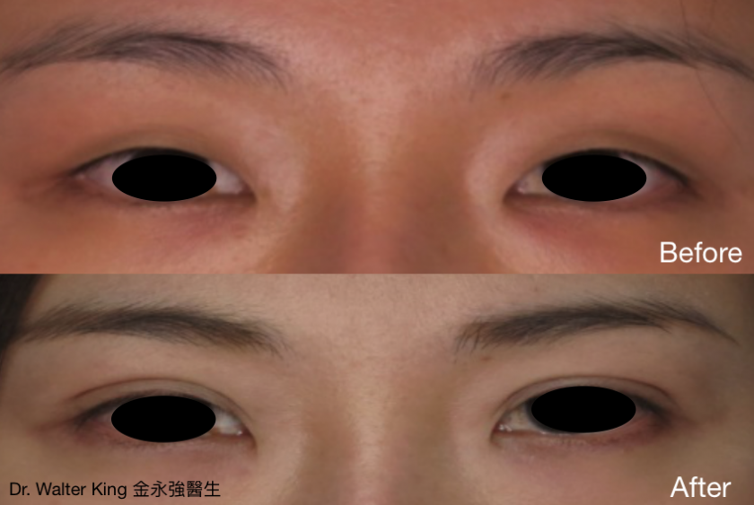 Double eyelid surgery B&A 4