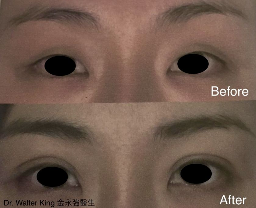 Double Eyelid Surgery | Cosmetic Central (首亞) Hong Kong - Plastic