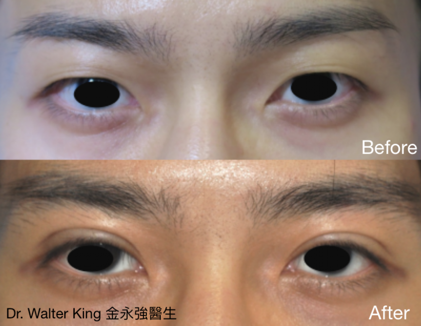 Double Eyelid Surgery Before & After 3