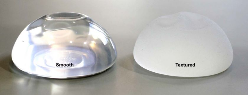 Textured vs Smooth Breast Implants_Walter King